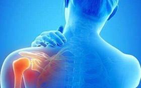 肩周炎的形成和哪些因素有关